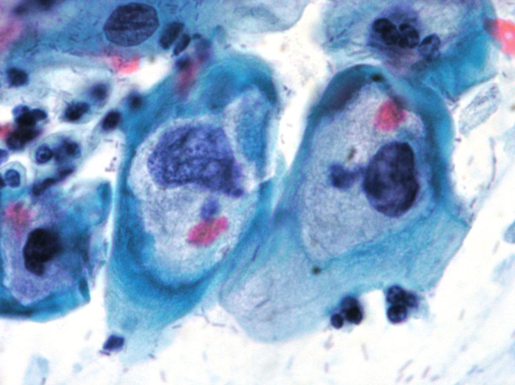 Nuevos criterios para reforzar el control de calidad de los análisis citológicos